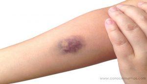 7 Razones no muy evidentes para la aparición de hematomas con facilidad